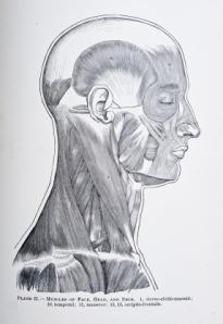 headache-puzzle-1