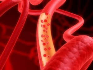 backattack-blood-vessels