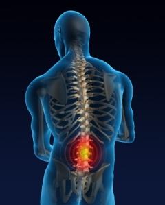 sciatica-skeletal image